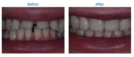 Blossom Dental Care & Implant Studio in York