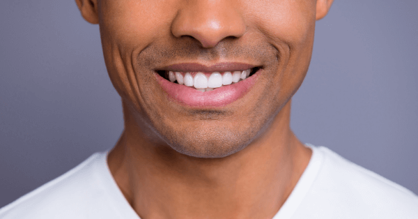 Man with dental implants smiling into the camera