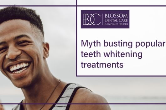 Top Five Myths about Teeth Whitening