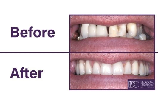 Stephen's Dental Implant Story Before & After